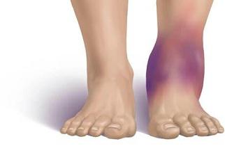 足首捻挫腫れ